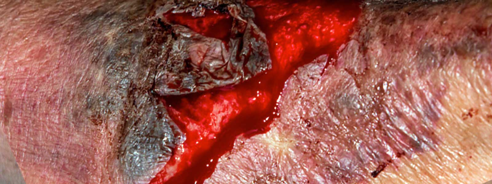 photo of a bleeding laceration