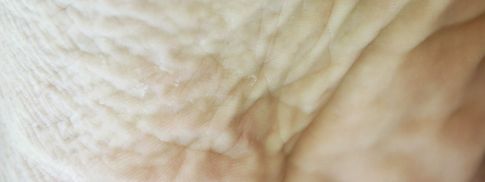 photo of macerated skin tissue
