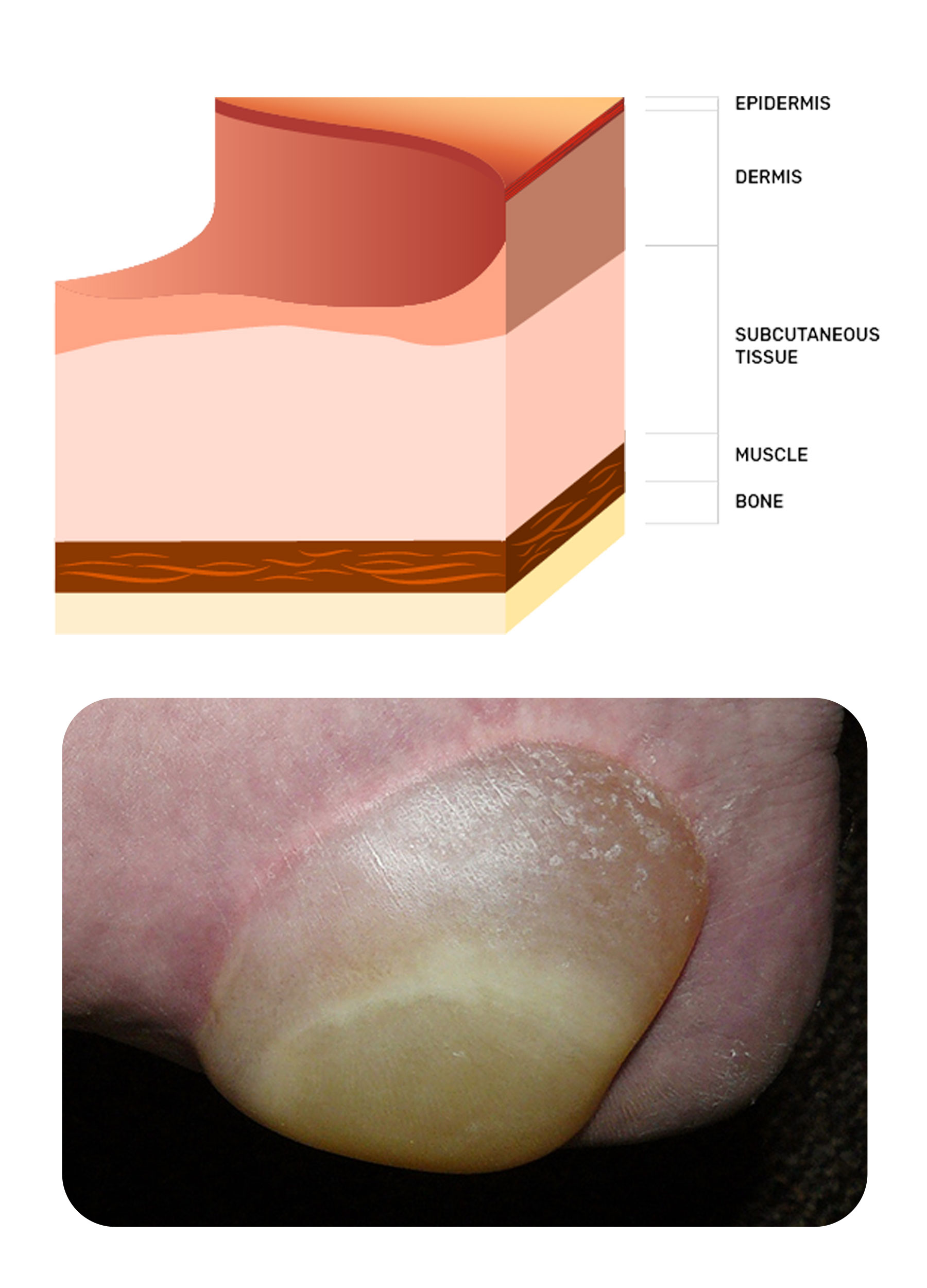 photo of a stage two pressure injury