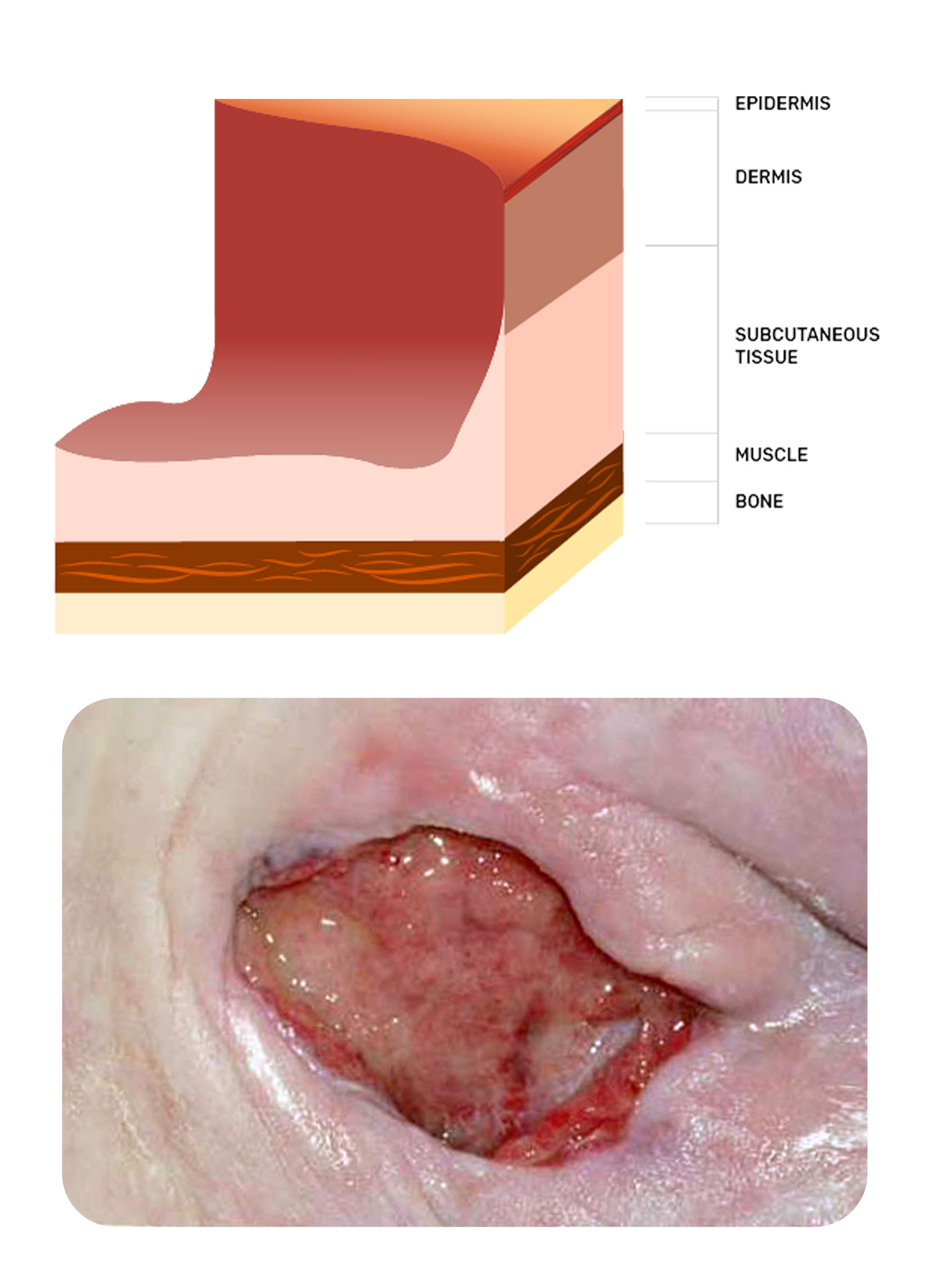 photo of a stage three pressure injury