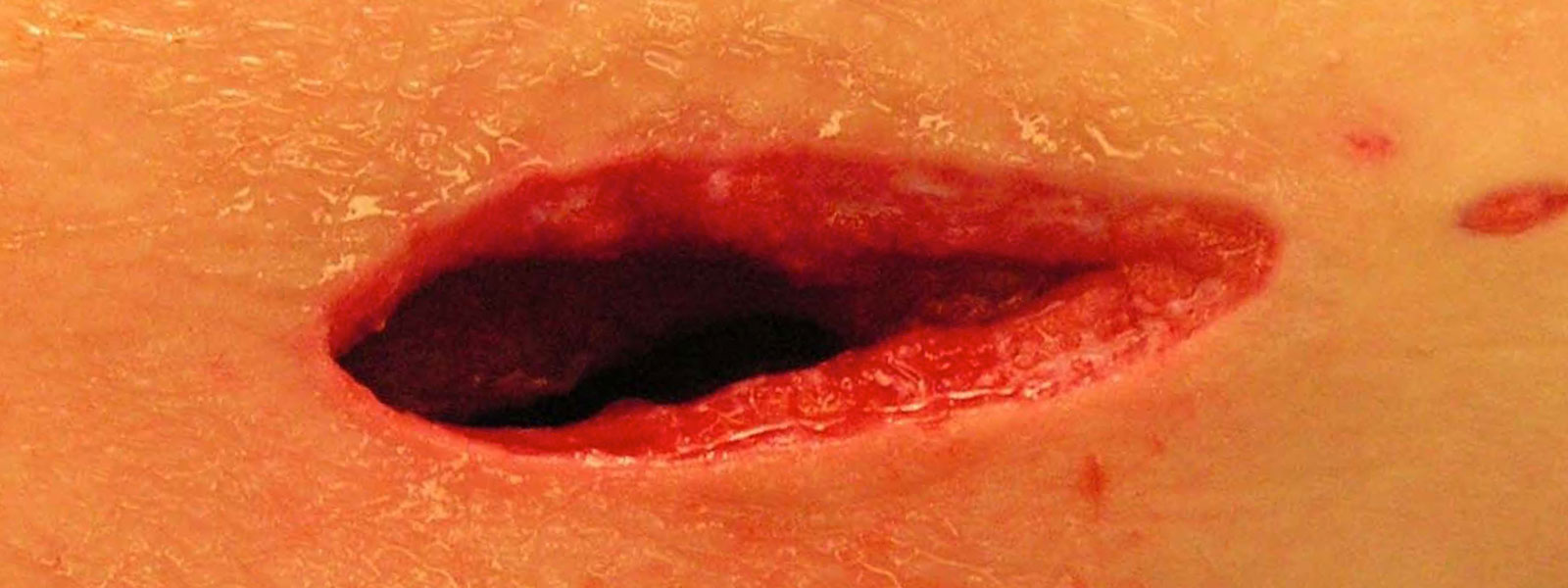 photo of a deshisced surgical wound