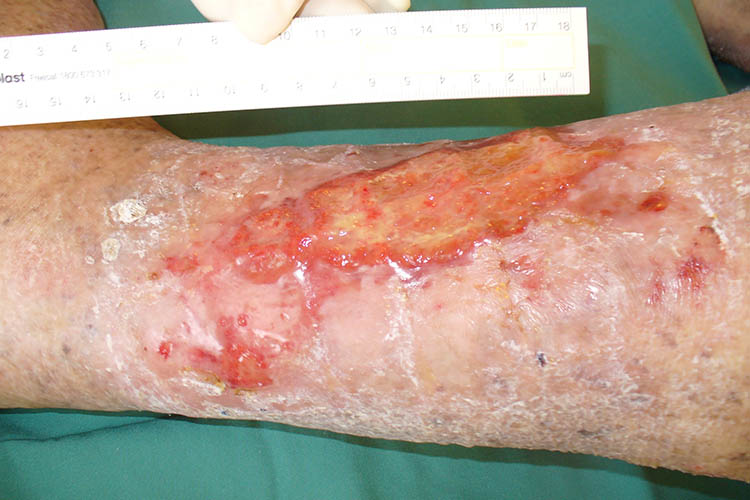 photo of a venous leg ulcer